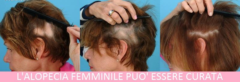 Perdita di Capelli nelle Donne  Cause dell Alopecia Femminile e ... 1f1eafc88c32